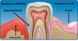 Dibujo de una bolsa periodontal